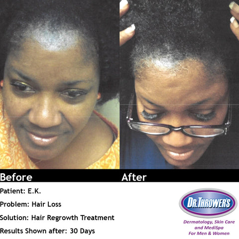 Thro-Grower Hair Regrowth