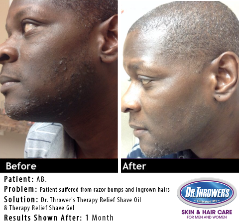 Dr. Thrower's Shave Bump Treatment
