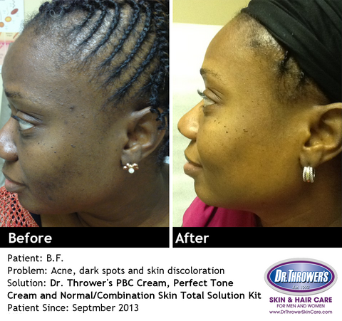 Dr. Thrower Acne Treatment Before & After Photo
