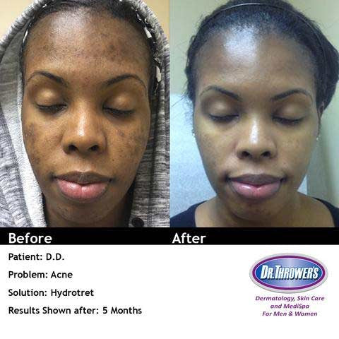 Acne and skin Lightening