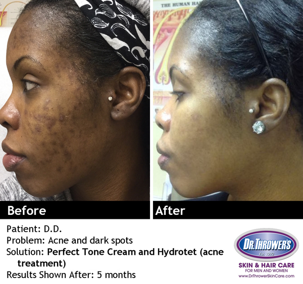 Perfect Tone Cream | skin lightening for skin discolorations, dark spots, scarring