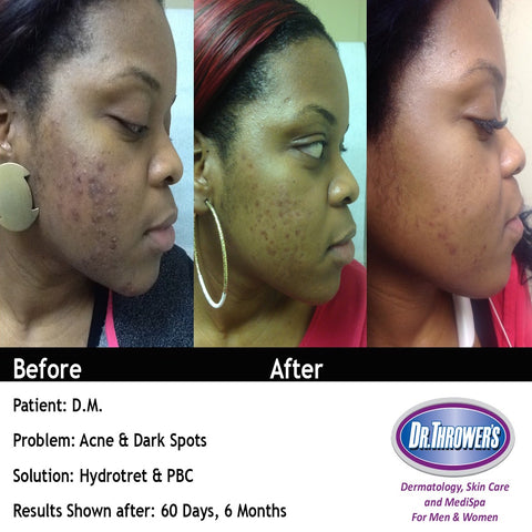 Acne & Skin Lightening