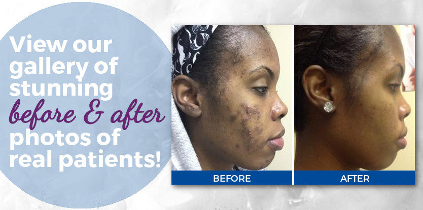 Dr. Thrower's Skin Care | Before & After Photos