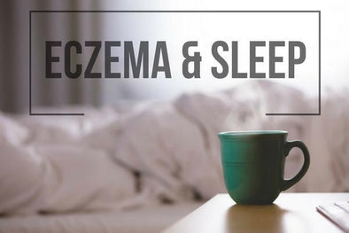 Eczema and Sleep