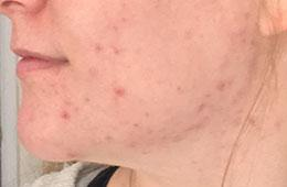 acne skincare case study before EB