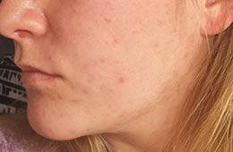 acne skincare case study after EB