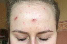 acne skincare case study before IL