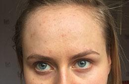 acne skincare case study after IL