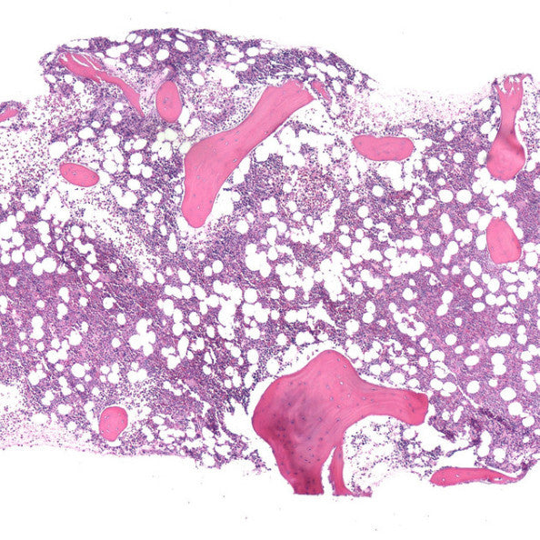 Bone Marrow Biopsy. Credit: By Gabriel C. Caponetti, MD. Previously published: No., CC BY 3.0, https://commons.wikimedia.org/w/index.php?curid=21939249