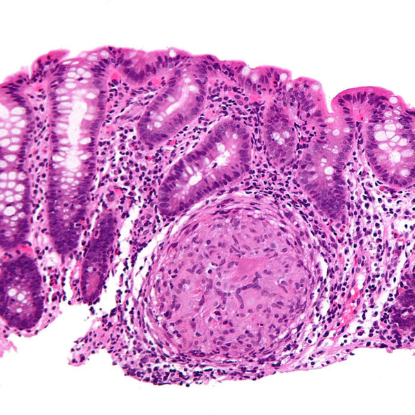 Colon Showing Crohn's Disease (High Magnification). Credit: Nephron - Own work, CC BY-SA 3.0, https://commons.wikimedia.org/w/index.php?curid=15058546