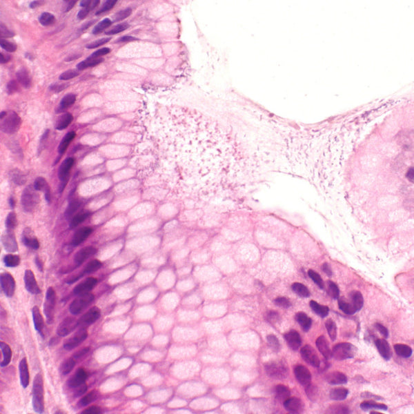 Stomach Biopsy Showing Helicobacter Pylori Gastritis. Credit: By Nephron - Own work, CC BY-SA 3.0, https://commons.wikimedia.org/w/index.php?curid=31105634