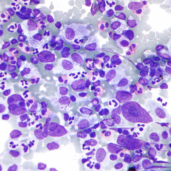 Eosinophil - Mast Cell Stain Kit - Teomics