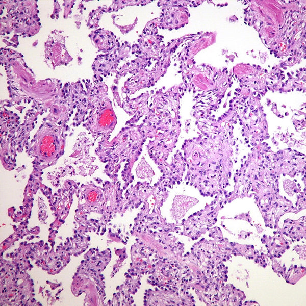 Pneumocystis pneumonia with alveolar septal inflammation. Credit: Yale Rosen (Attribution-ShareAlike 2.0 Generic (CC BY-SA 2.0)) at https://www.flickr.com/photos/pulmonary_pathology/7165924648. Thanks, Yale.