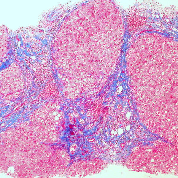 Trichrome Stain Showing Cirrhosis of the Liver. Credit: Ed Uthman from Houston, TX, USA - Cirrhosis of the liver (trichrome stain)Uploaded by CFCF, CC BY 2.0, https://commons.wikimedia.org/w/index.php?curid=30104490