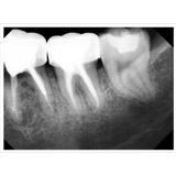dental xrays by clio sensor