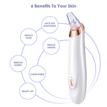 Blackhead Remover, Joly Joy Electric Vacuum Suction Machine For Men and Women, USB Rechargeable Acne Extractor (White)