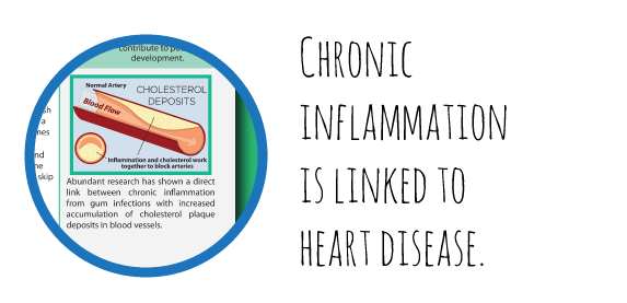Link between chronic inflammation and heart disease