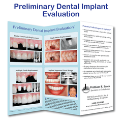 Preliminary Dental Implant Evaluation