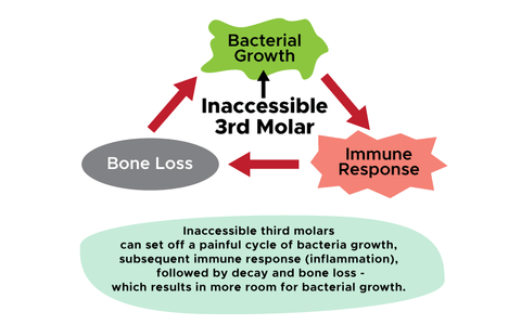 Inaccessible wisdom teeth and cycle of bacterial growth, infection, pain and bone loss