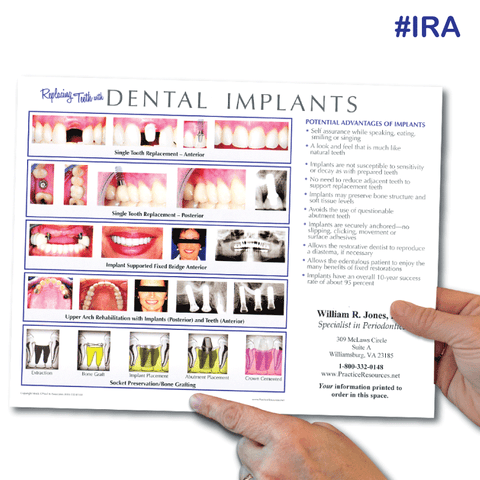Implant Referral Aid