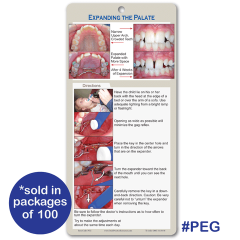 Palatal Expander Guide
