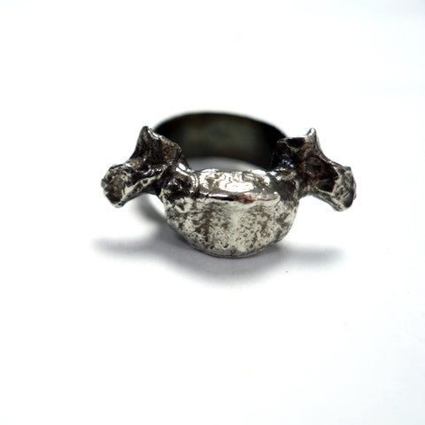 Cozen NYC Osteo Ring