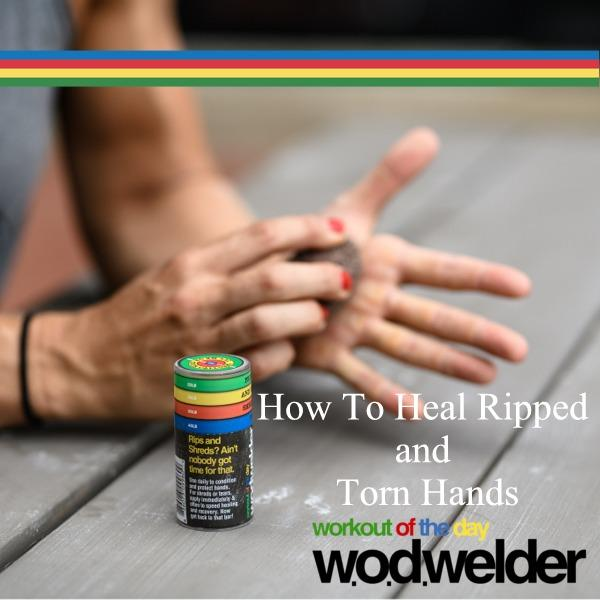 how to heal ripped hands