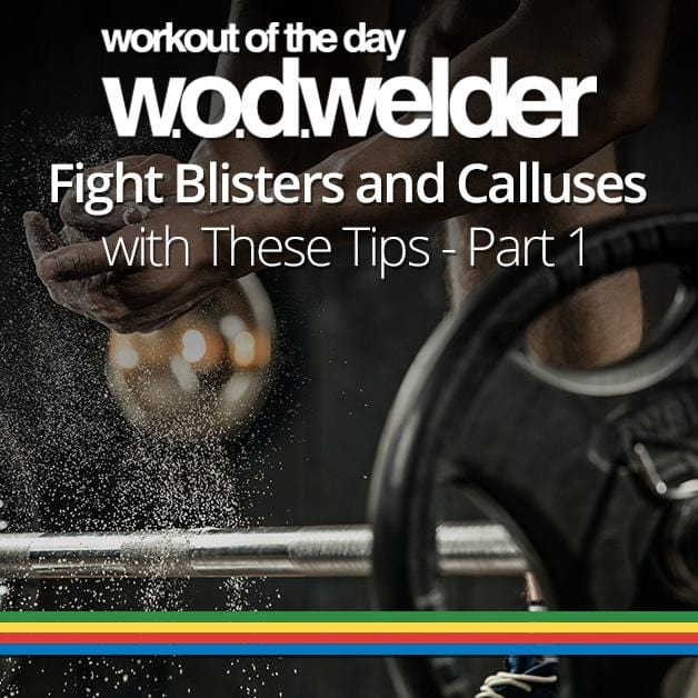 Fight Blisters and Calluses with These Tips - Part 1