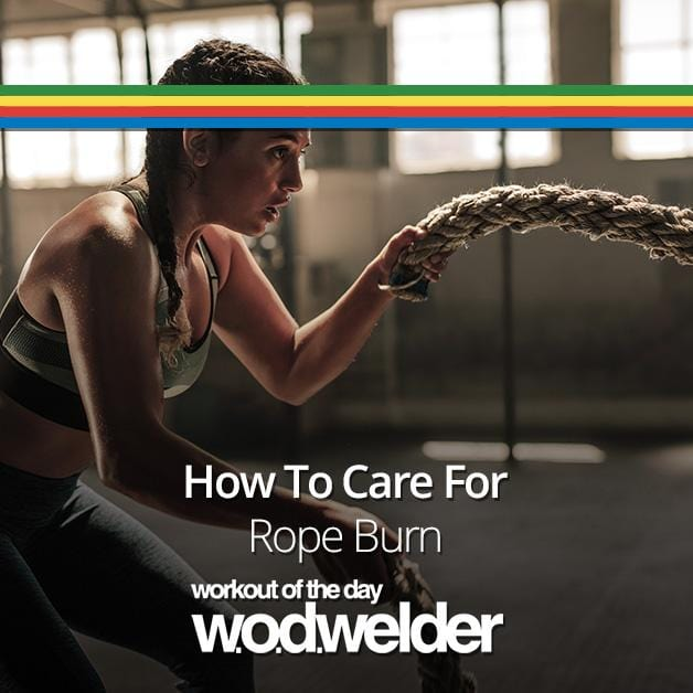 How to Treat Rope Burn | Heal & Care for your Hands with WOD Welder