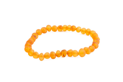 Adult Amber Necklace - Raw Cherry Baroque