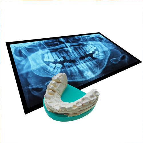 Dental impression taking - Reading