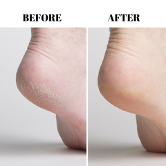 Intensive Foot & Heel Repair