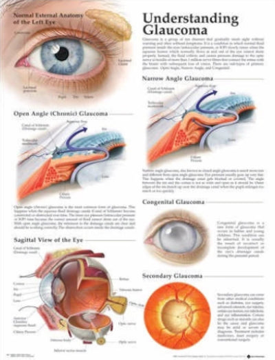 UNDERSTANDING GLAUCOMA LAMINATED WALL CHART