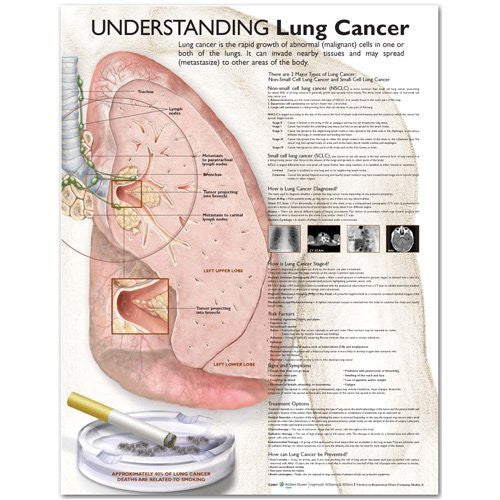 UNDERSTANDING LUNG CANCER LAMINATED WALL CHART - Charles Darwin University Bookshop