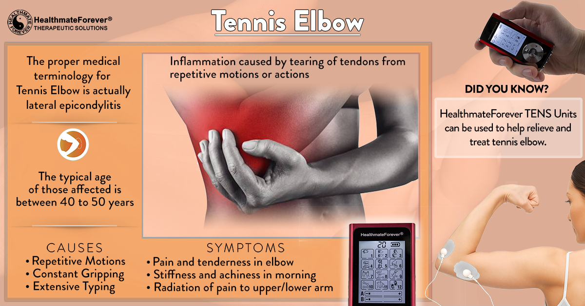 Tennis Elbow Pain Therapy with TENS Unit