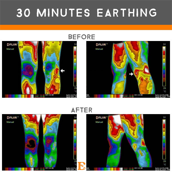 benefits 30 minutes earthing inflammation
