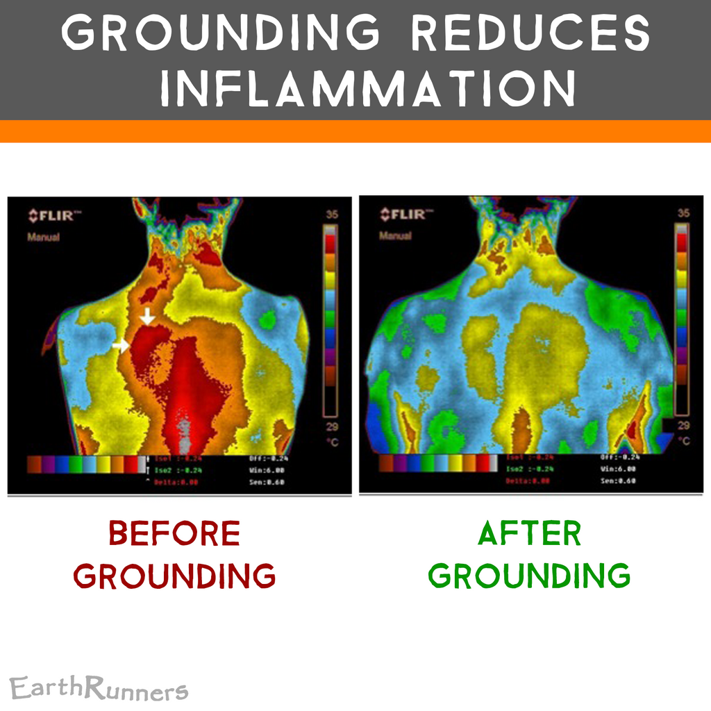 grounding reduces inflammation