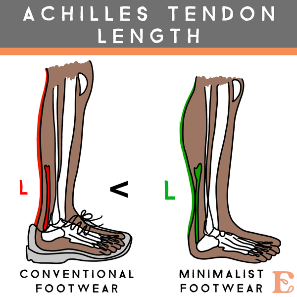 normal achilles tendon length