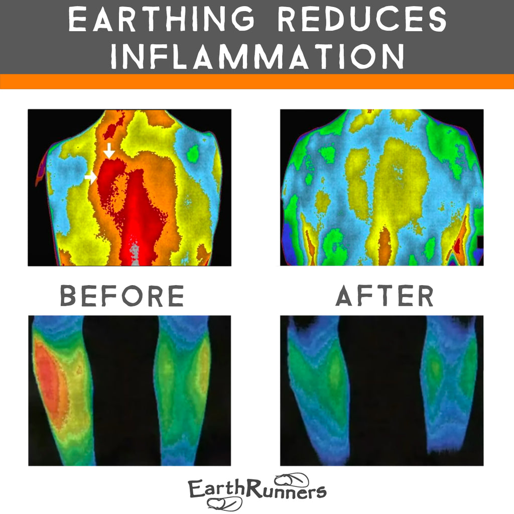 earthing lowers inflammation