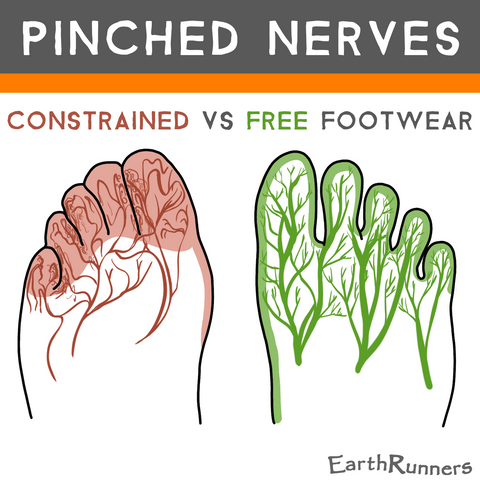 shoes pinch foot nerves