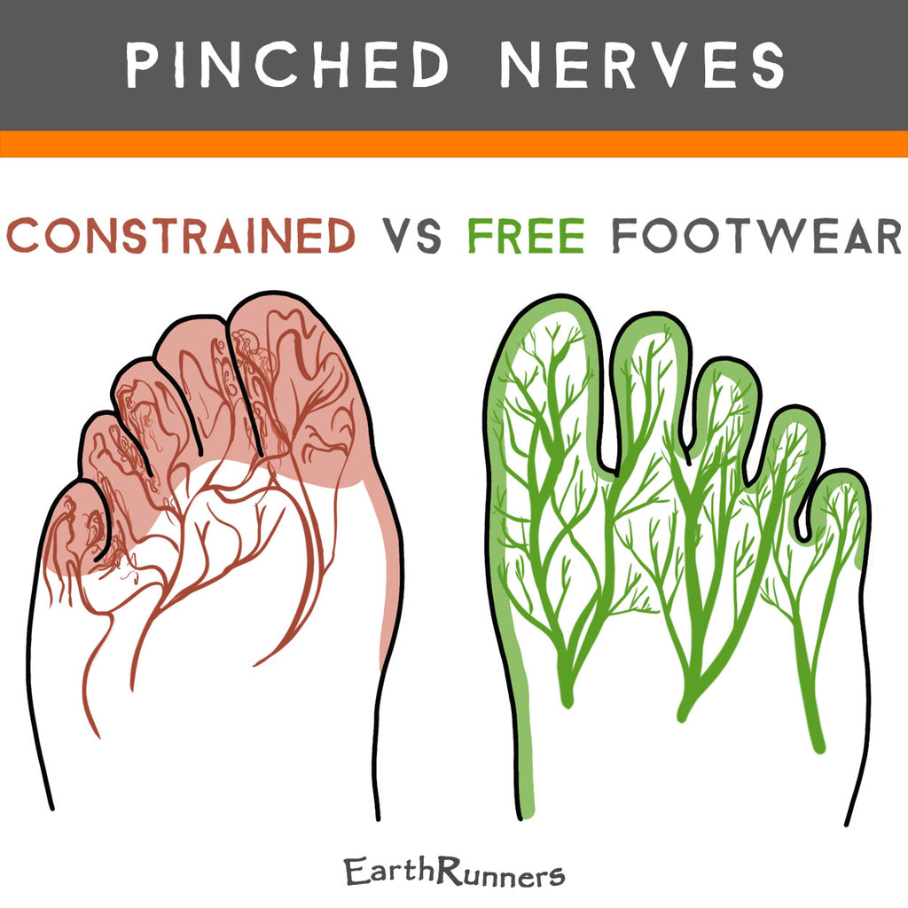 shoes cause pinched nerves