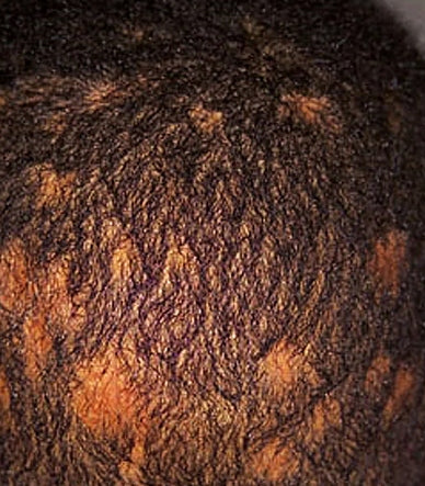 Home remedies for ringworm on scalp Curl Again Scalp Treatment