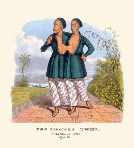 The Siamese Twins, Chang and Eng, age 18