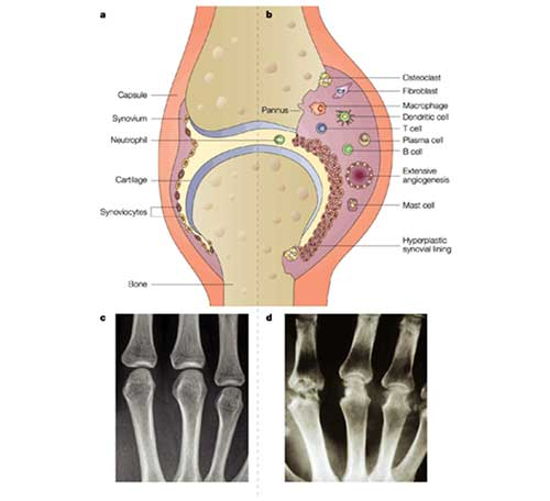 Joint inflammation