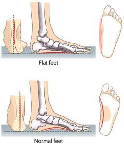 Poor Posture - Normal Feet Flat Feet