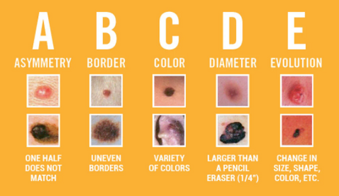 Skin Cancer ABCDE's to assess your skin - The Zealios Blog