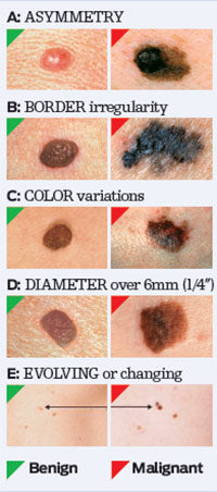 skincancer.org The ABCDE's of skin cancer
