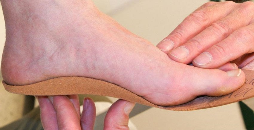 Are custom orthotics worth it?