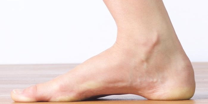High Arches Problems: How to Relieve Foot Arch Pain