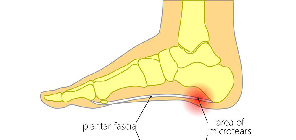 The Ultimate Guide to Plantar Fasciitis